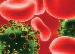 На Киевщине умирают от СПИДа и туберкулеза