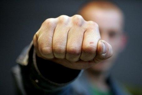 В Броварах народный депутат повредил милиционеру грудную клетку