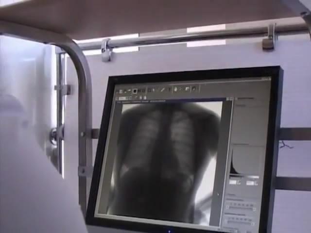 Жители Голосеево могут теперь обследоваться на флюорографе в Центральном медучреждении района