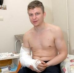 Киевские хирурги пришили парню оторванную руку за три часа