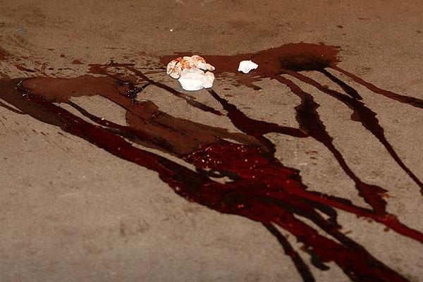 В парке Шевченко избили мужчину. Милиция ехала 6,5 часов - Свидетель