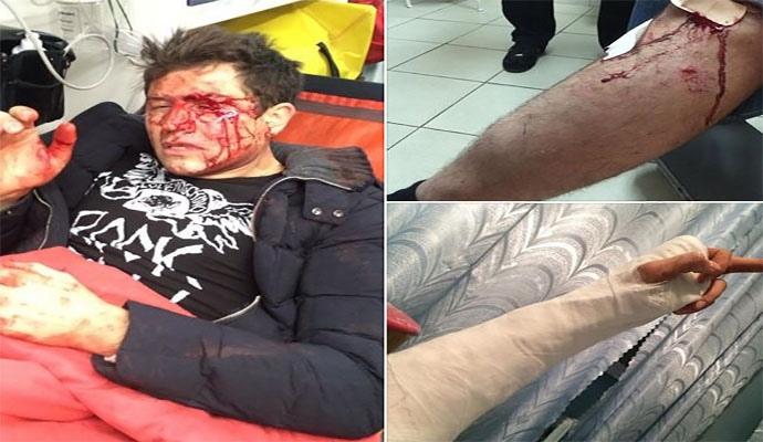 В Киеве молодчики жестоко избили Андрея Джеджулу