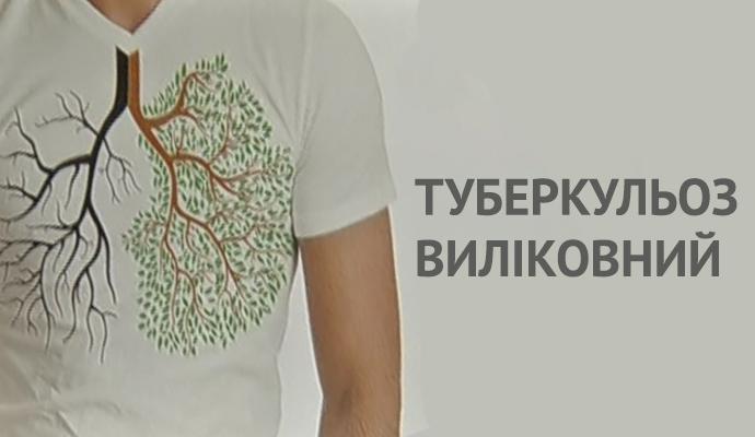 Жители Киева смогут бесплатно провериться на туберкулез, ВИЧ/СПИД