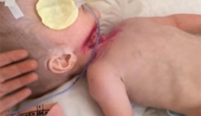 """Кровавые раны и сантиметровые ногти: в больница Киева ребенка положили """"под замок"""""""