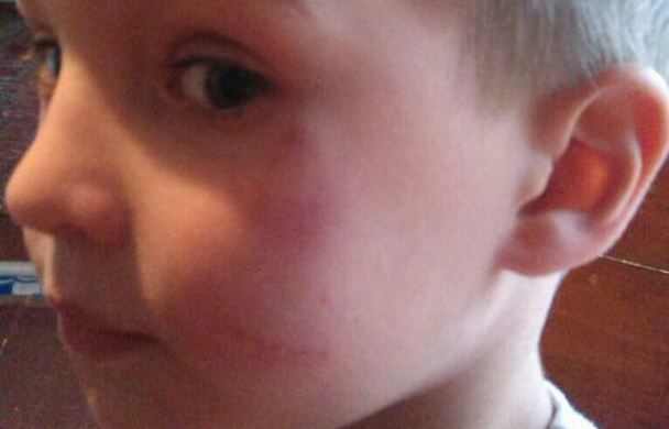 Скандал в детсаду под Киевом: побили маленького ребенка