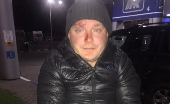 В Киеве мужчина отравил своего знакомого