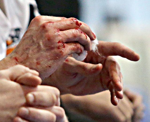 На Киевщине мужчина кулаком убил пожилую пенсионерку