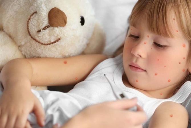 В садики Киева не пускают детей без прививки от кори