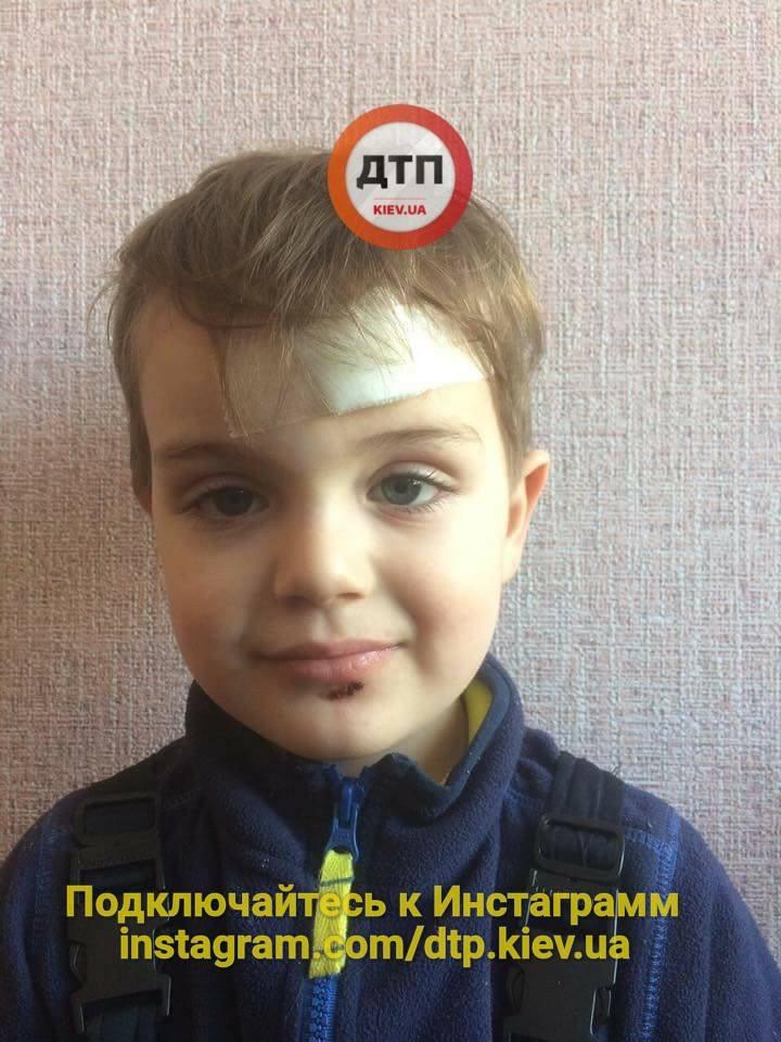 В Киеве на детской площадке пострадал маленький ребенок