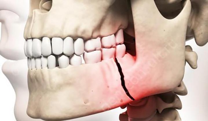 В киевском супермаркете гопники сломали мужчине челюсть