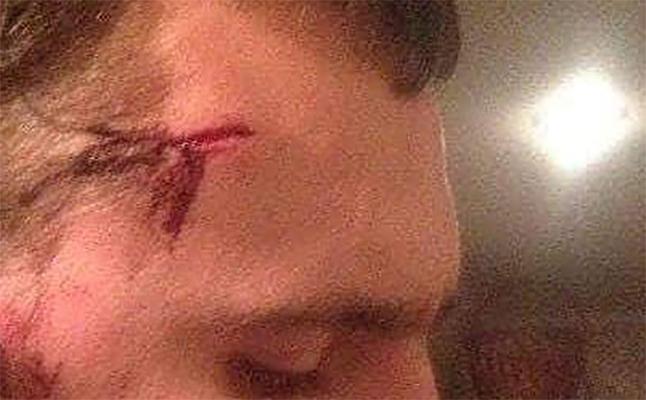 Студенты-строители разбили мужчине голову куском арматуры