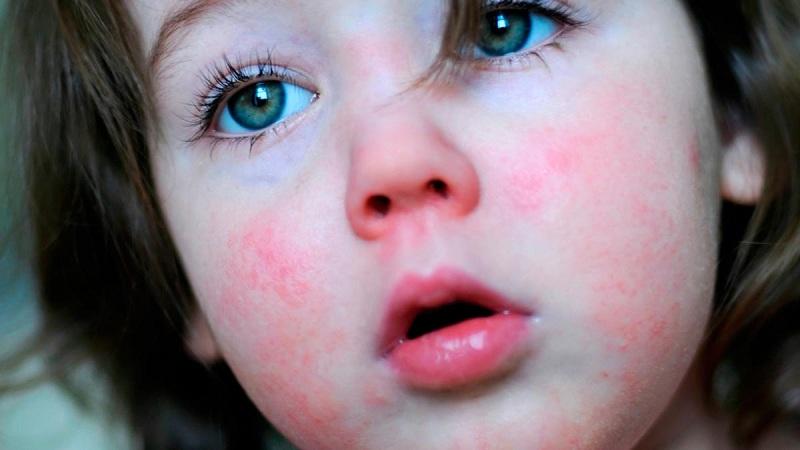 В детском садике под Киевом вспышка скарлатины