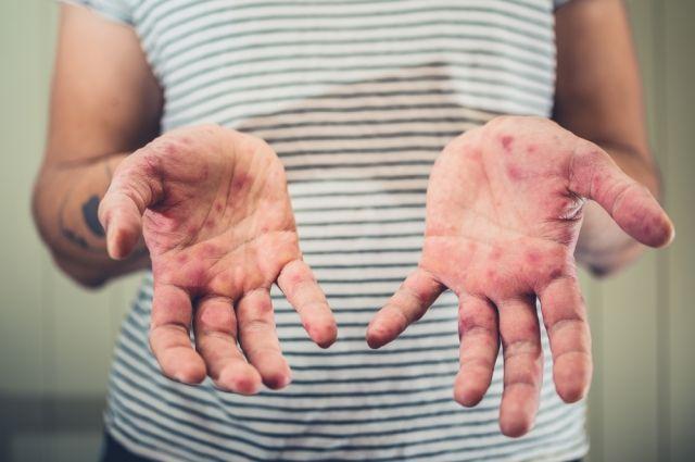 За последнюю неделю в Киеве 44 человека заболели корью