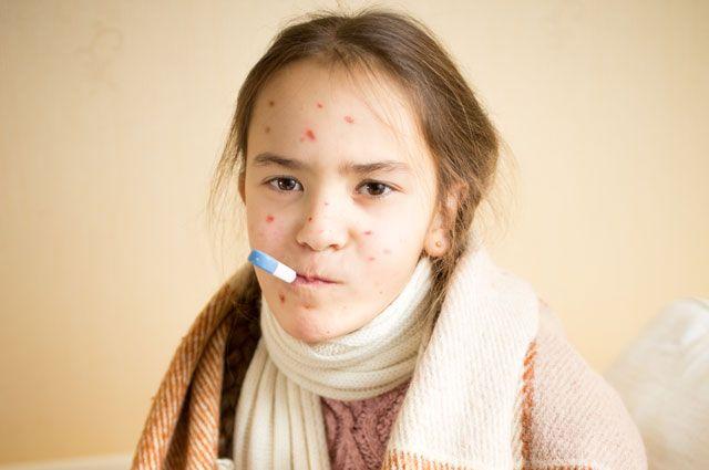 В Киеве 23 детей заболели корью