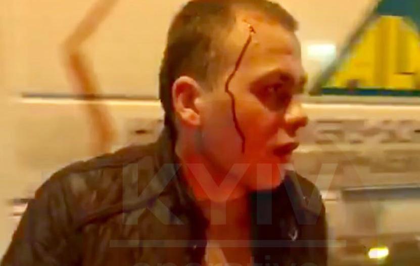 """На Броварском проспекте пьяный """"прокурор"""" устроил головокружительное ДТП"""
