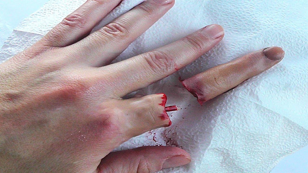 На Оболони преступнику оторвало палец во время стрельбы
