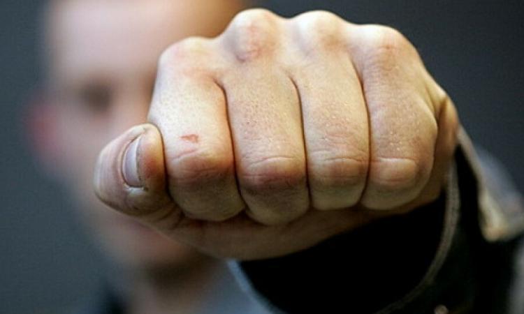 Киевский полицейский пострадал во время драки трех мужчин