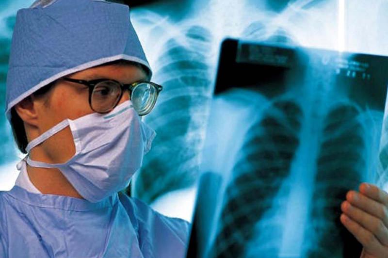 У жителей Киевщины диагностировали открытую форму туберкулеза