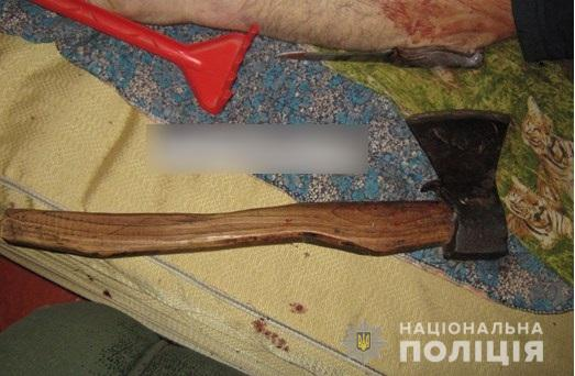 На Киевщине сын-наркоман не оставил живого места на теле родного отца