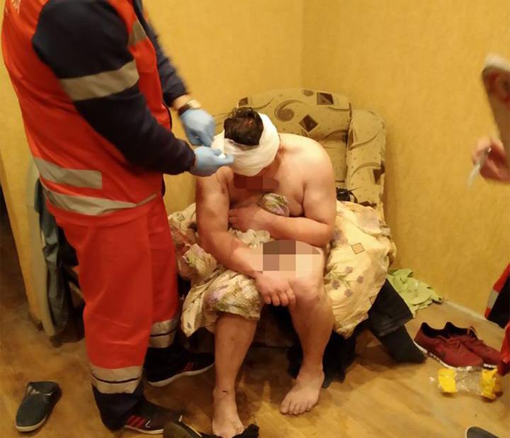 Под Киевом патрульные обнаружили мужчину-наркомана в луже крови