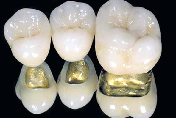 Плюсы и минусы металлокерамических коронок