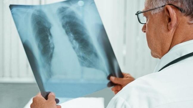 Как обезопасить себя от туберкулёза?