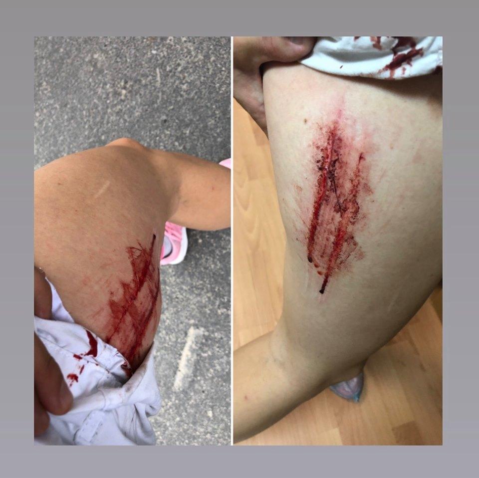 Киевлянка получила ужасные травмы в одной из городских маршруток