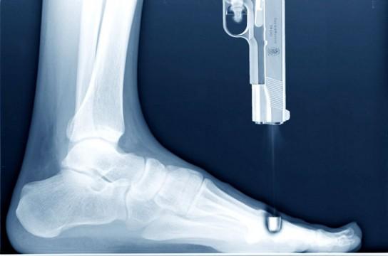 Киевлянин прострелил ногу банковскому работнику
