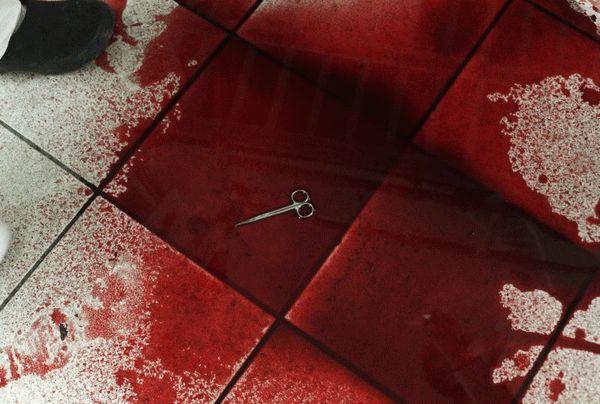 В зале игровых автоматов киевлянин потерял много крови