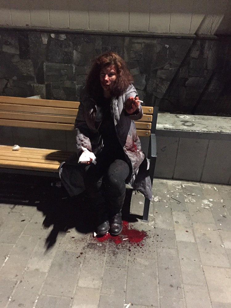В Киеве несколько мужчин выбили пьяной женщине зубы
