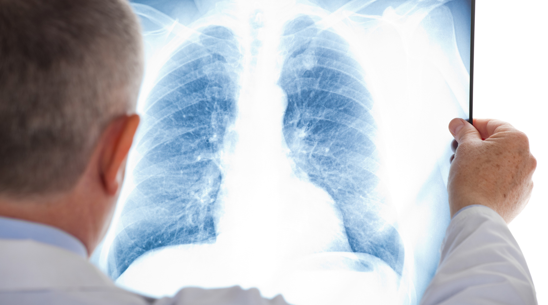 У многих киевлян стали выявлять еще и пневмонию