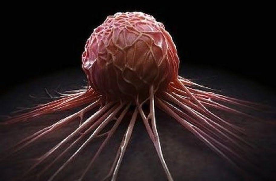 Компания Madanes даст возможность застраховаться от рака