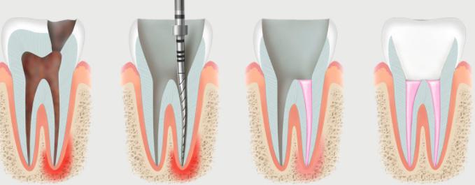 лечению корневых каналов зубов