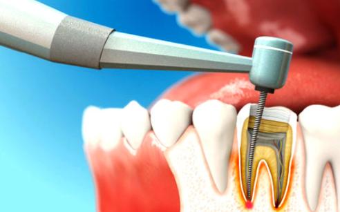 Как лечат каналы зубов (эндодонтическое лечение)?