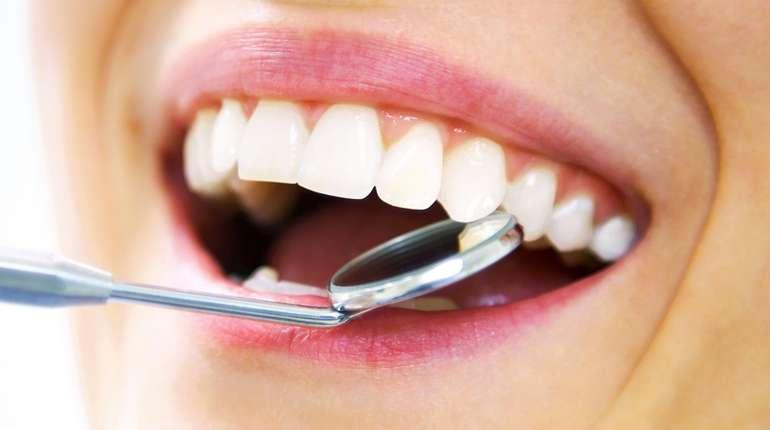 Зубной камень: опасно ли?