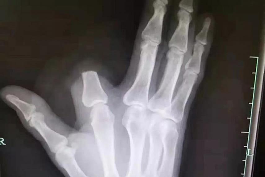 На Киевщине во время игры брат отрубил палец своей сестре